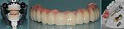 Dentist |Dental lab|Dental treatment |Dental clinic in chennai