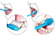 Best Dental Implants surgeon clinic in mylapore