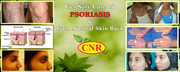 CNR HERBS | Treatment of Psoriasis | Cnr Herbs in Mumbai