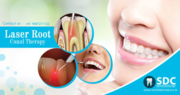 Dental Laser Treatment,  Laser Root Canal Treatment Cost In Chennai