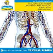 Vascular surgery |  Best Neurologist in Chennai